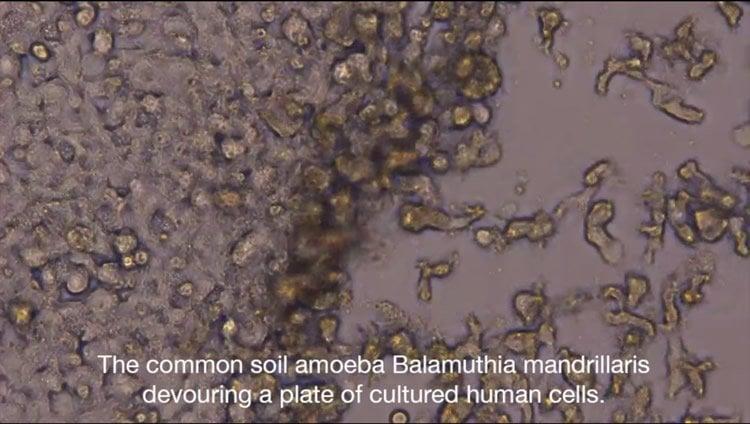 This image shows Balamuthia mandrillaris.