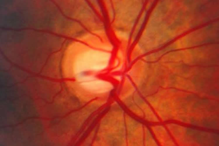 Image of optic nerve in a patient with glaucoma.