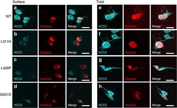 Image shows a number of microscopic images of impaired cell surface expression of KCC2.