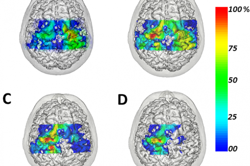 This shows MRI scans where the brain plasticity has taken place.