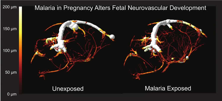 Brain scan showing altered blood vessel formation in the offspring.