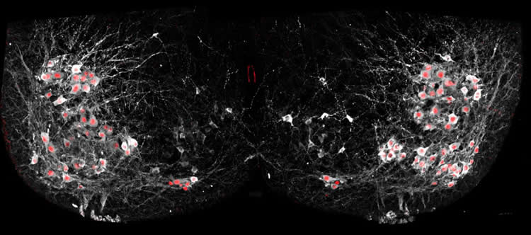 Image shows motor neurons.