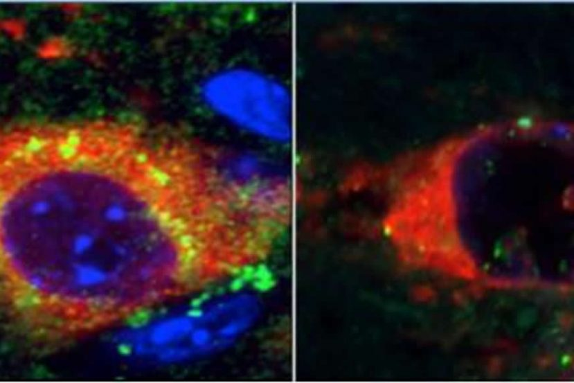Image shows dysfunctional lysomes in parkinson's model.