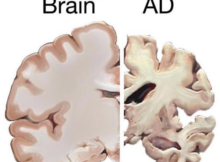 This shows a healthy brain slice and one from an alzheimer's patient.