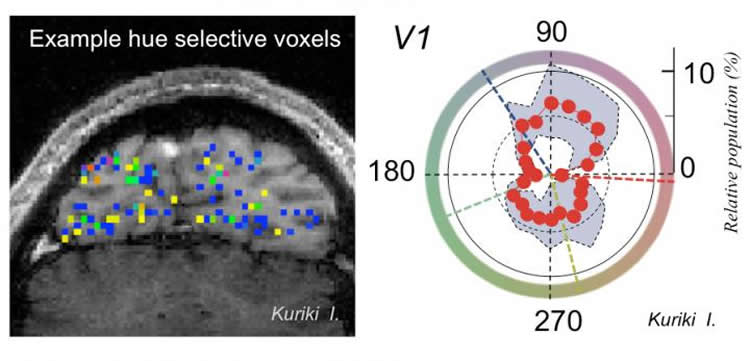 Image shows a brain scan with the neuron areas highlighted in different colors.