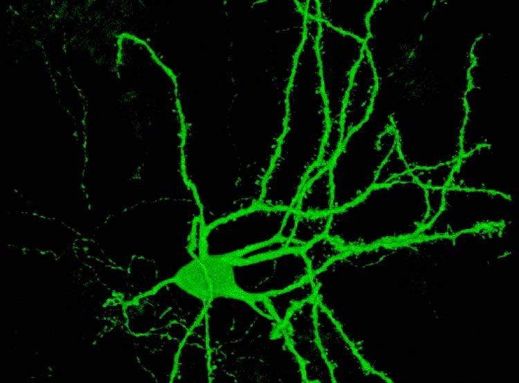 Image shows a striatal medium spiny neuron.