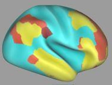 Picture shows composite data from functional magnetic resonance imaging scans.