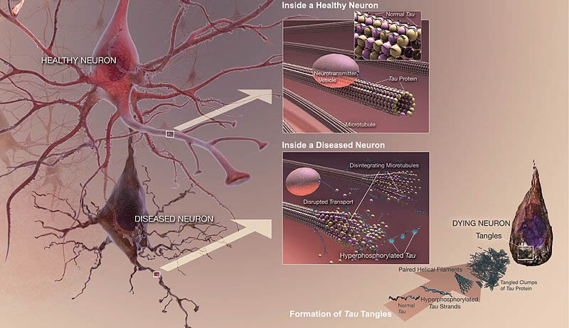 Illustration of shows how tau proteins affect neurons.