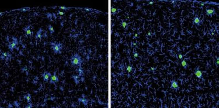 Image shows amyloid beta plaques surrounded by microglia.