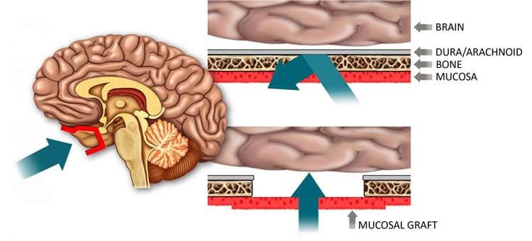 Illustration of a brain.