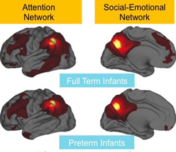 These brain scans show the weaker connections in those born preterm.