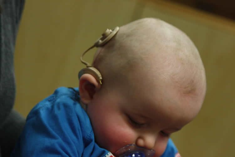 Photo of a baby with a cochlear implant.