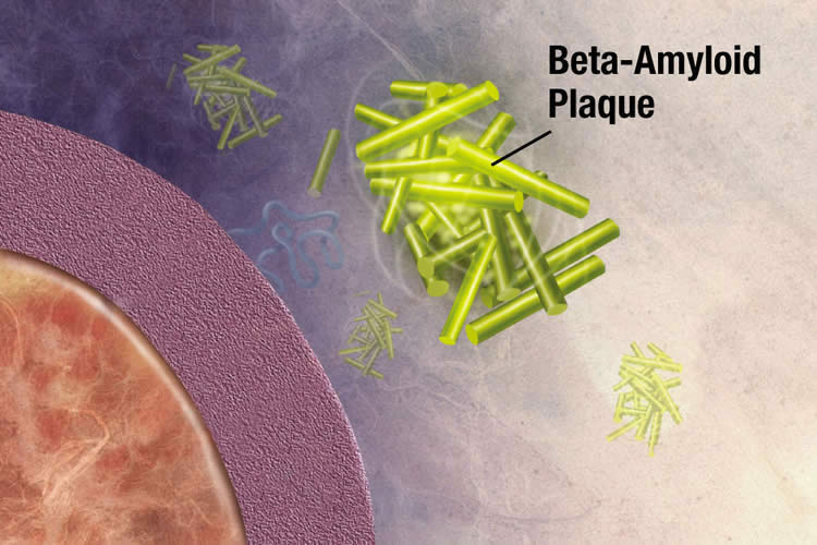 Illustration of amyloid beta attacking a cell.