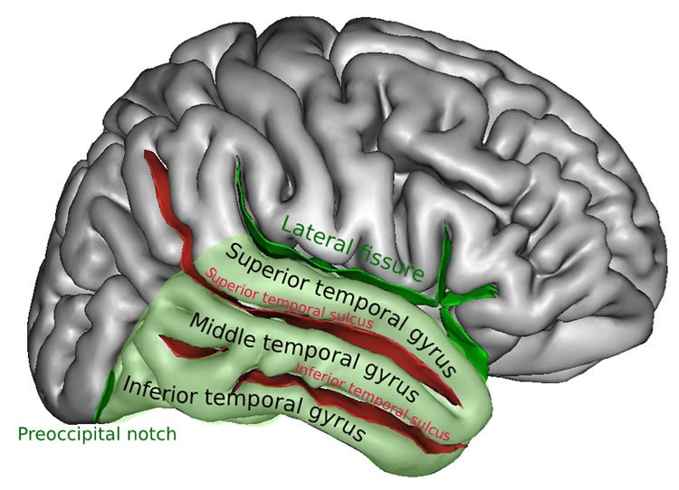 drawing of the brain with the mid temporal gyrus highlighted.