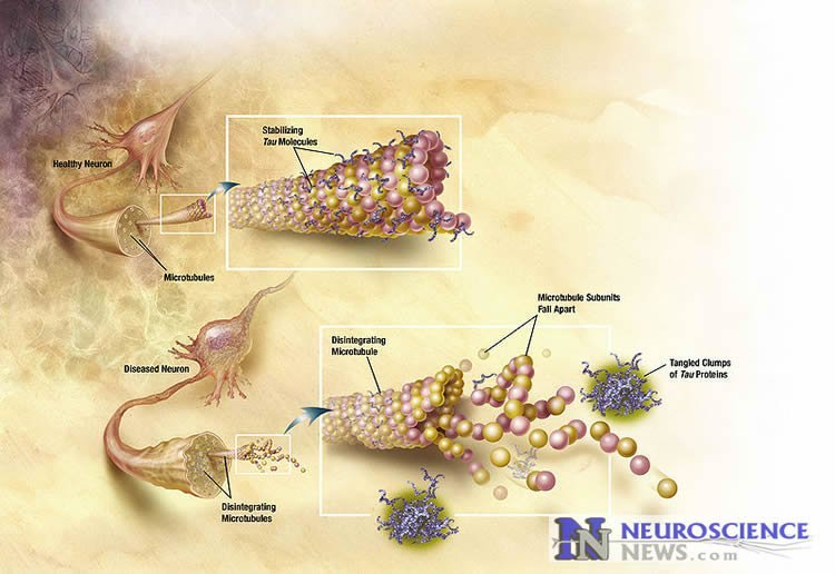 Diagram shows how tau protein affects the brain in Alzheimer's.