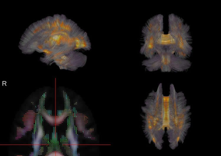 Image of brain scans taken for this study.