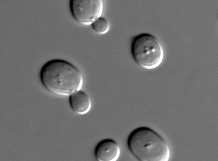 Image shows yeast cells.