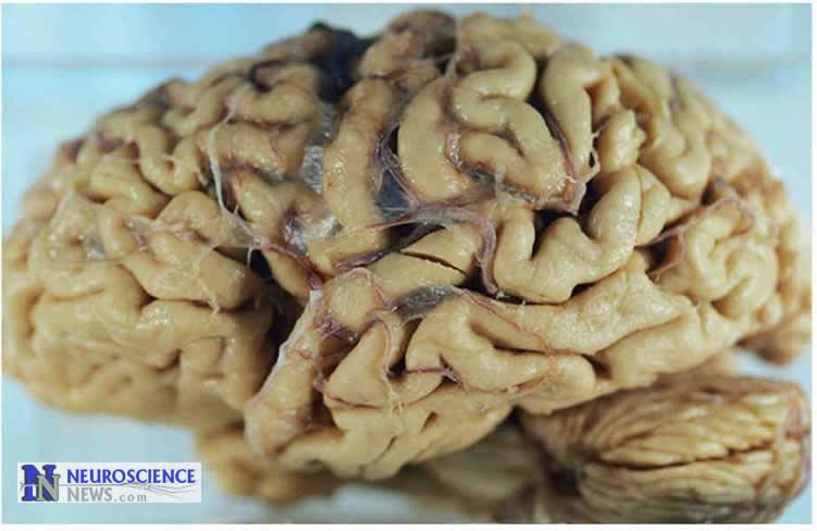 Photo of an alzheimer's brain.