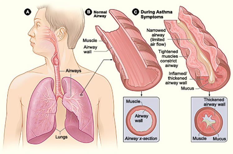 Diagram shows how the airways constrict during an asthma attack.