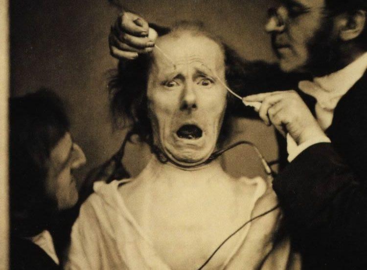 Photo of Guillaume Duchenne de Boulogne manipulating a patient's face.