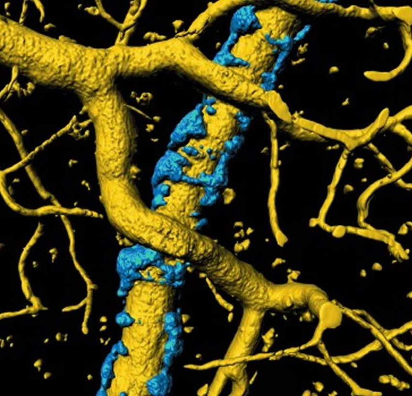 Illustration of AB plaque build up on blood vessels.