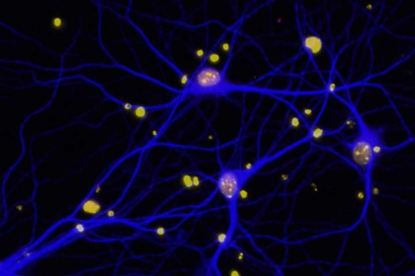 This image shows reduced levels of BRCA1 (red) in neurons (blue).