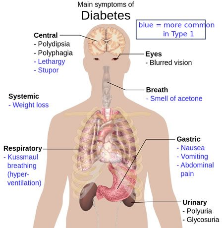 Diagram showing how diabetes affects the body.
