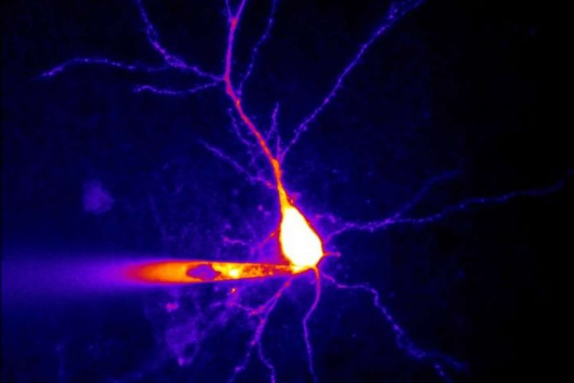 Image of a hippocampal neuron.