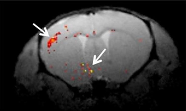 An MRI of a mouse brain.