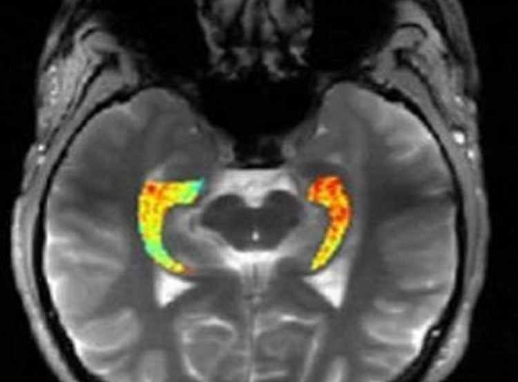 MRI shows glutamate levels in the hippocampus.