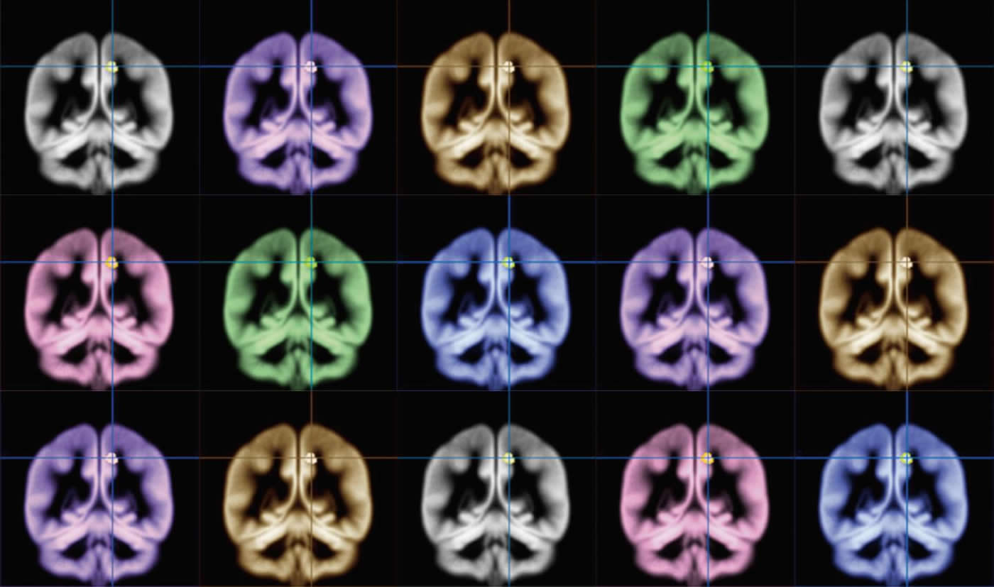 MRI brain scans in rainbow colors.