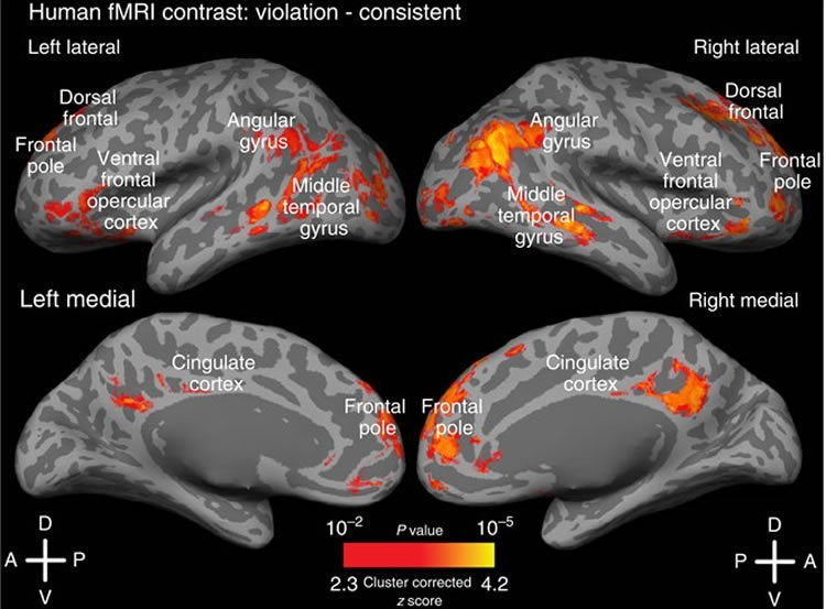 Photo shows brain scans labeled with different areas highlighted.
