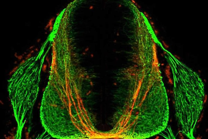 Image shows a section of a mouse spinal cord.