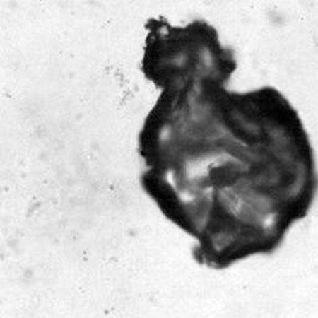 Image shows a vapor bubble.