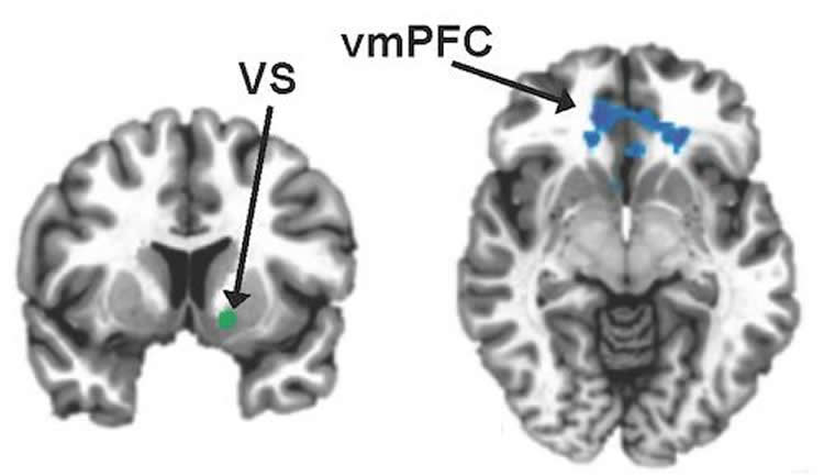 Brain scans with the vmPFC and VS highlighted.