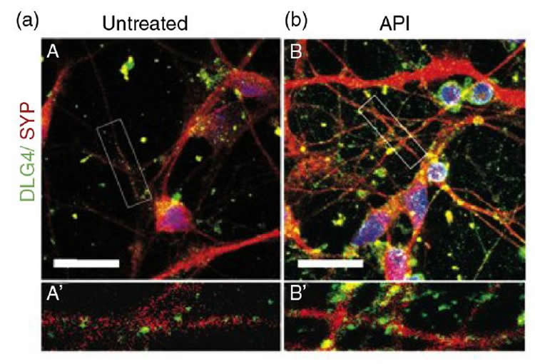 Image shows neurons and synapses.