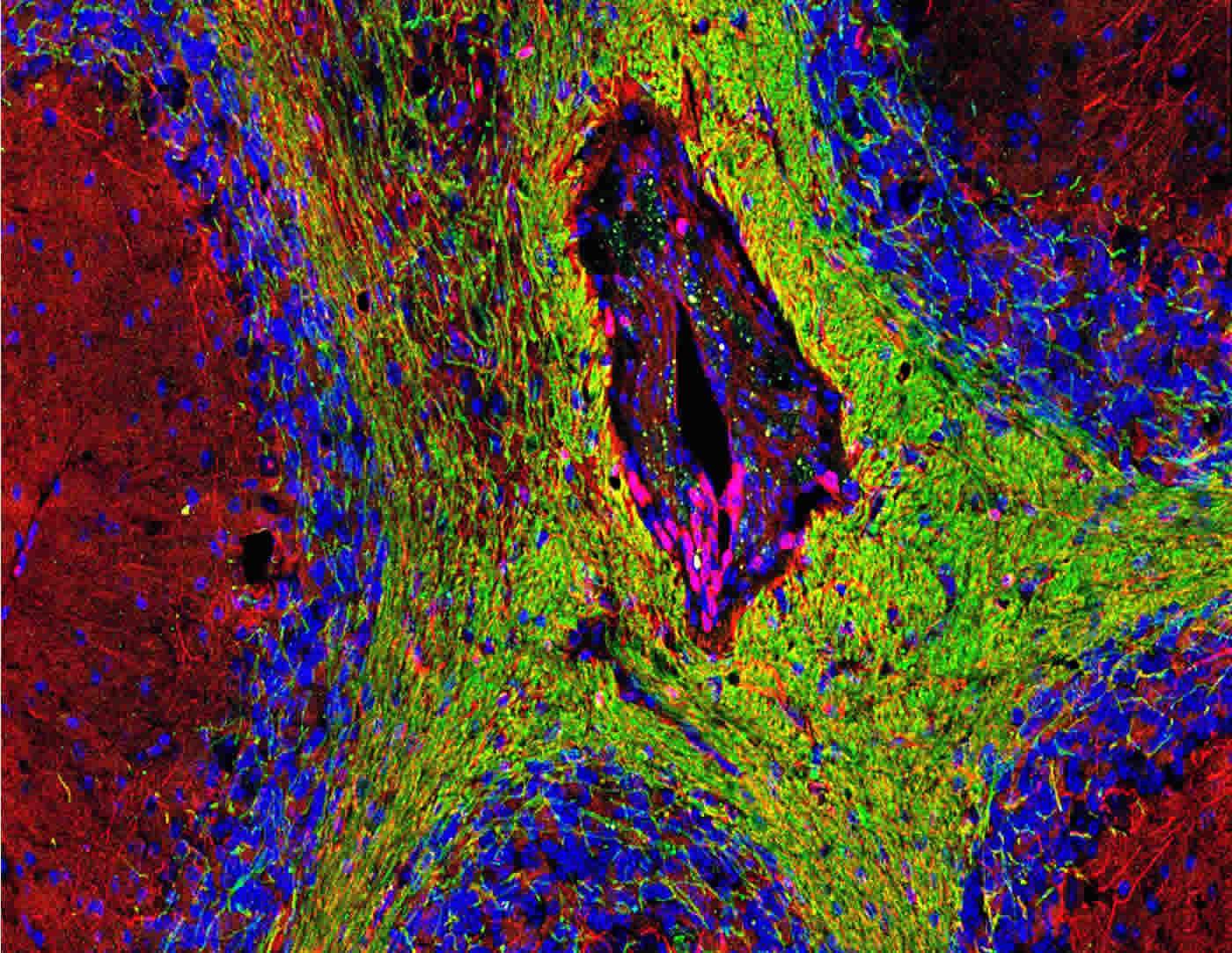 Image of demyelinated neurons.