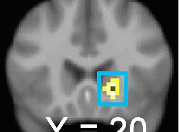 Brain scan with the right caudate highlighted.