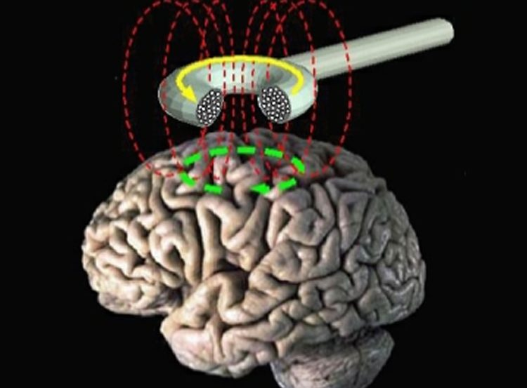 Image of a brain undergoing TMS.