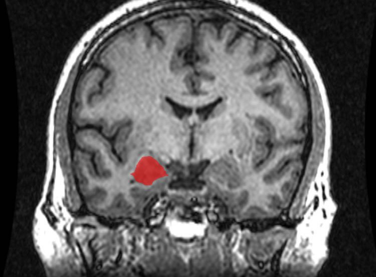 Brain scan with the amygdala highlighted in red.