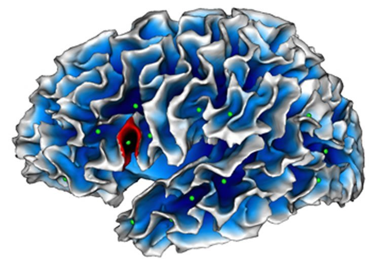 Image shows a brain map with the cortical folds. The Broca's area is higlighted.