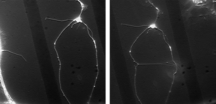 Image shows neurons before and after reconnection.