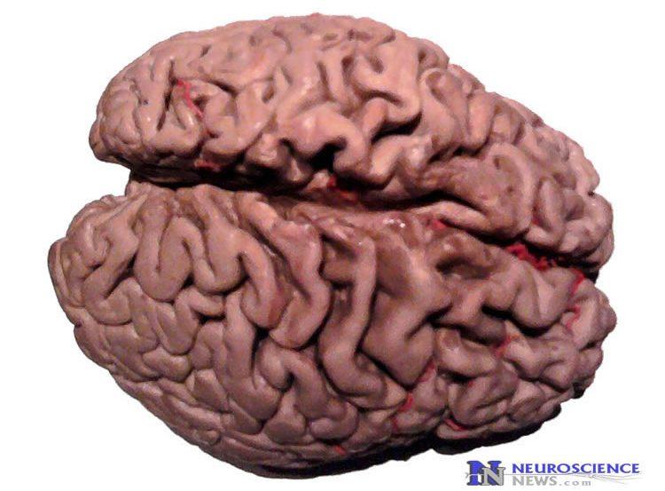 Image shows a plastinated alzheimer's brain.