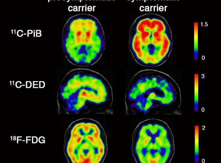Image shows PET scans taken as part of the study.