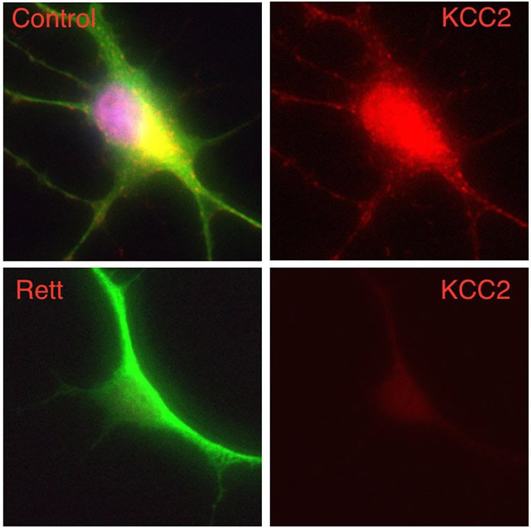 Image shows human cells from a patient with Rett syndrome.