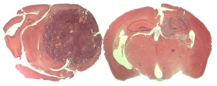 Image shows brain slices of a glioblastoma patient.