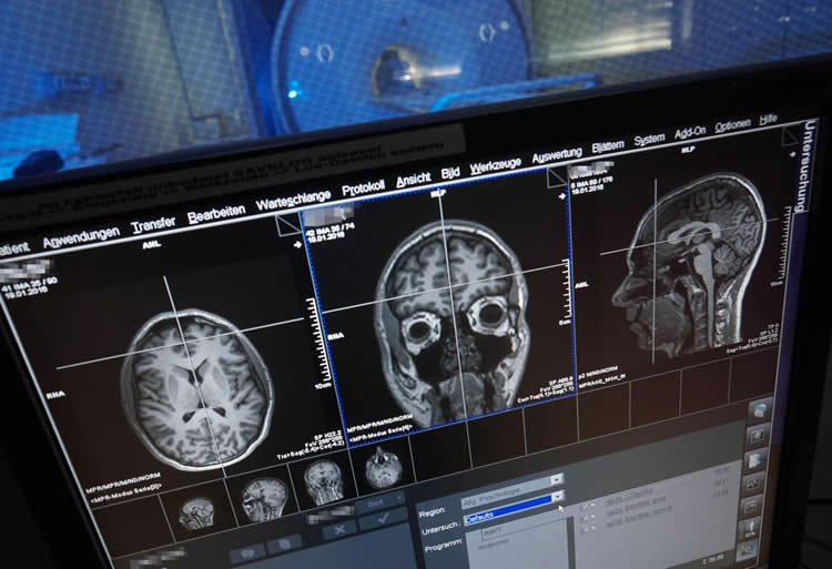 Image shows brain scans on a computer screen.