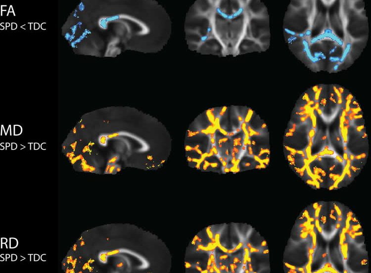 Image shows brain scans from the research.