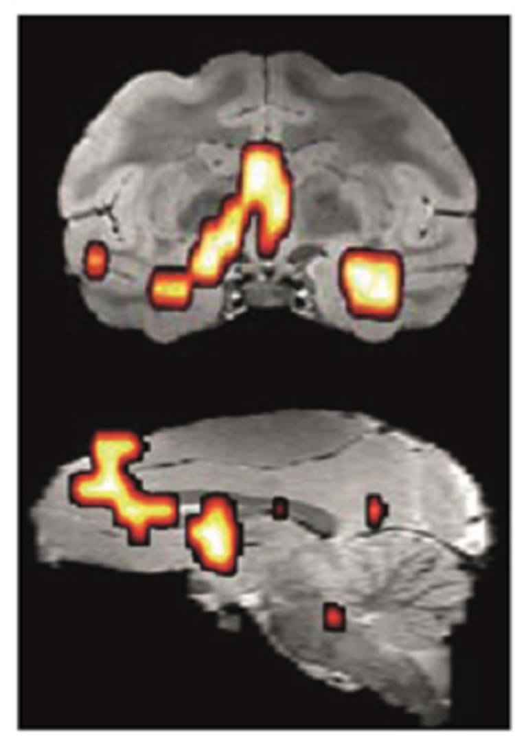 PET scans with hyperactive brain regions highlighted.