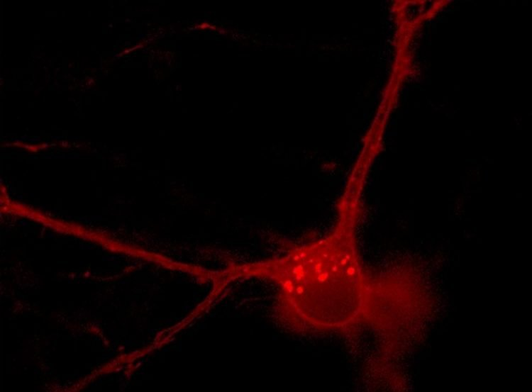 Image shows a neuron in red.